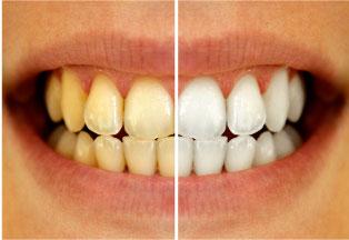 ホワイトニング before&after画像